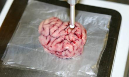 Diseñan un bisturí inteligente que localiza tumores cancerígenos en el cerebro